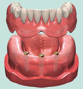 proth ses sur implants mario charest denturologiste. Black Bedroom Furniture Sets. Home Design Ideas